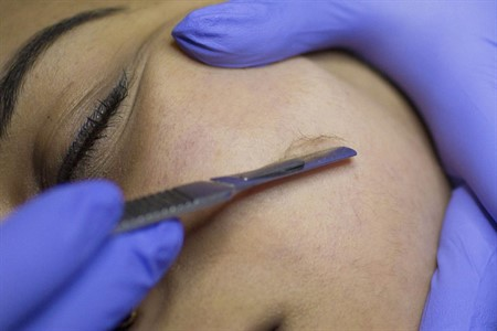 Dermaplaning (exfoliation) Photo